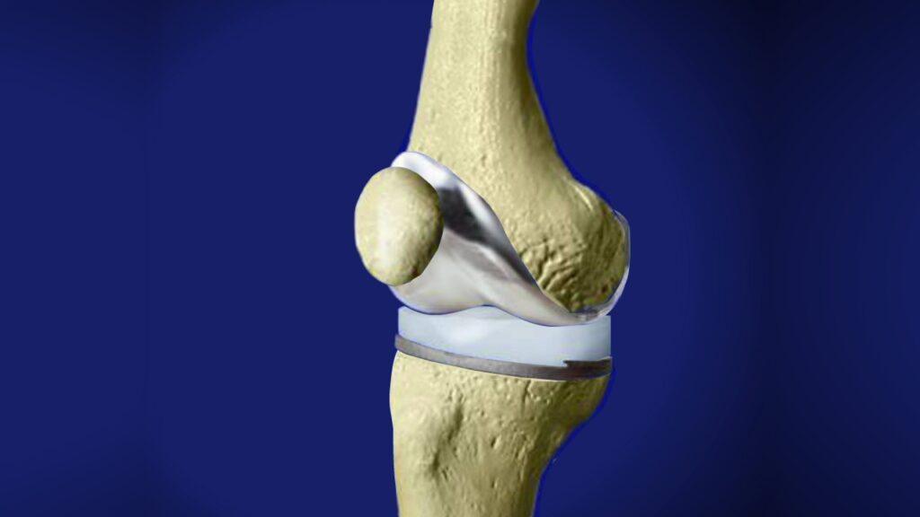 Prothèse du genou : quand faut-il opérer ?